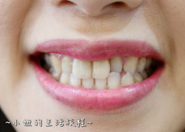proimages/in-case/1490371687-3187785198_n.jpg