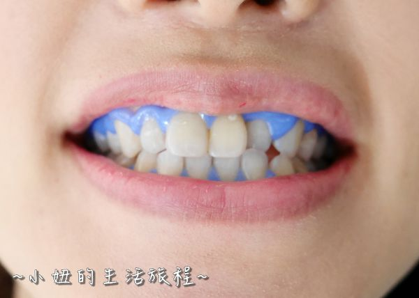 proimages/in-case/1490371709-3980878167_n.jpg