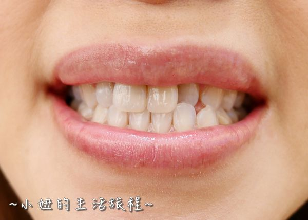 proimages/in-case/1490371721-1127148944_n.jpg
