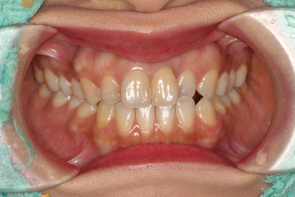 proimages/in-case/1490797943-3782935410_n.jpg