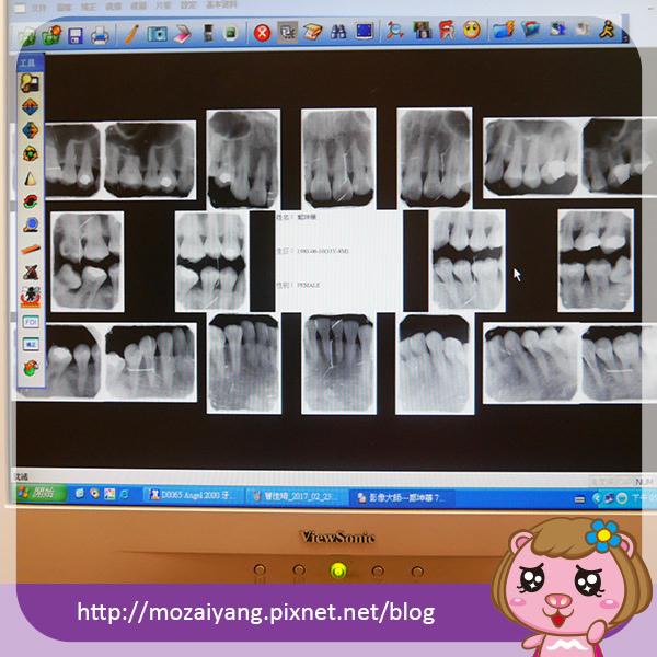 proimages/in-case/1492540105-880838471.jpg
