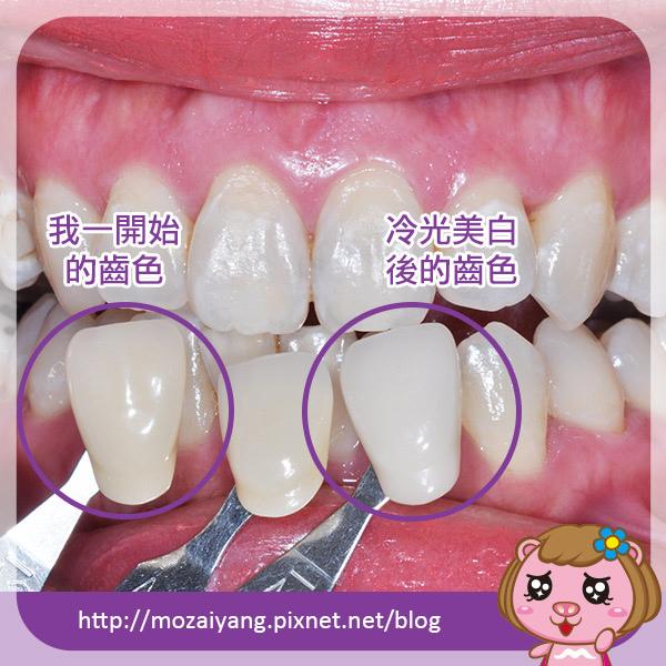 proimages/in-case/1492771334-2924448390.jpg