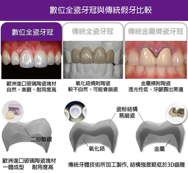 proimages/in-pro/pro-01/teeth.jpg