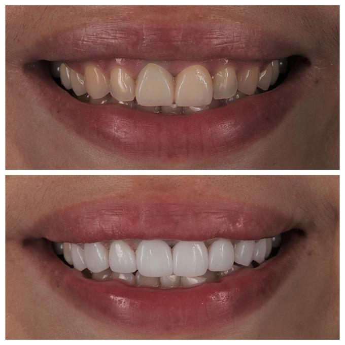 <P ALIGN=LEFT>[郭小姐]</p>主訴:齒色黃,微笑時不想露出牙齦</NOBR>