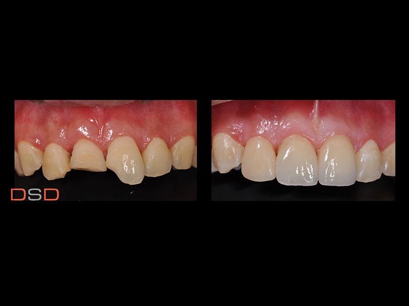 牙齒咬裂或外力影響斷裂